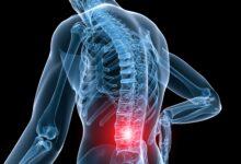 Bel ve sırt ağrısı sebepleri